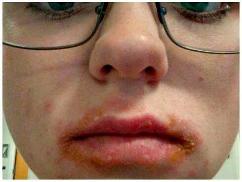 alergias balsamo labial eos